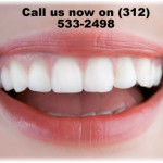 chicago teeth whitening