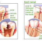 dental-pulp-root-canal