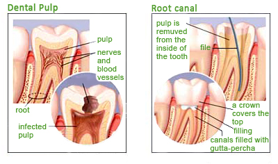 how to keep a root canal from getting infected