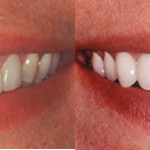 6204514609 9177974ae1 150x150 - Things You Need to Know about Cosmetic Dentistry