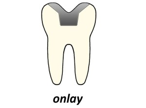 The-Facts-about-Dental-Onlays