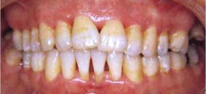 Cut Out Plaques and Be Free from Future Dental Hardships