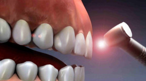 Exceptional Benefits of Laser Root Canal Therapy