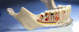What Makes Root Canal Therapy Superb Today