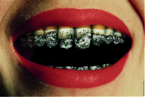 Prevent Tooth Loss by Quitting Smoking Habit