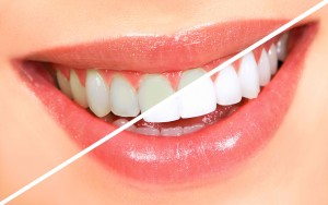 5Ws of Teeth Whitening