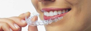 Bits of Info about Invisalign Treatment