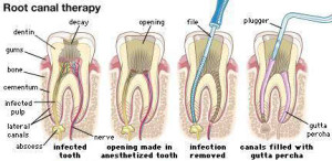Why Get Root Canal Treatment