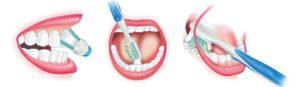 Oral Hygiene 101