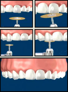 Reshape Teeth thru Enamel Shaping Treatment