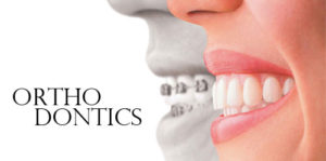 What Orthodontics Can Offer You 300x149 - What Orthodontics Can Offer You?