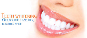 Power Teeth Whitening 101 300x132 - Power Teeth Whitening 101