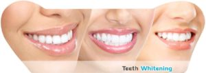 Teeth Whitening Treatment Facts Guidelines 300x106 - Teeth Whitening Treatment Facts & Guidelines