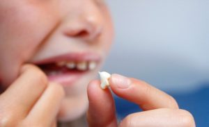 Preventive Tips for Knocked Out Tooth2 300x183 - Preventive Tips for Knocked Out Tooth