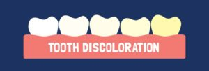 Dark Shades of Facts of Tooth Discoloration 300x103 - Dark Shades of Facts of Tooth Discoloration