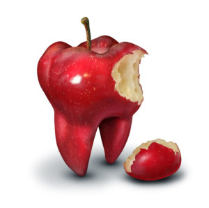 Chronic Effects of Tooth Loss 300x298 - Chronic Effects of Tooth Loss